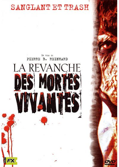 La Revanche des mortes vivantes - DVD